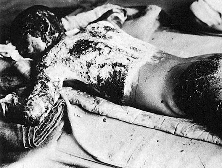 6. August: Atombomben auf Hiroshima